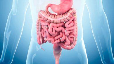 İrritabl Bağırsak Sendromu (IBS) Nedir?